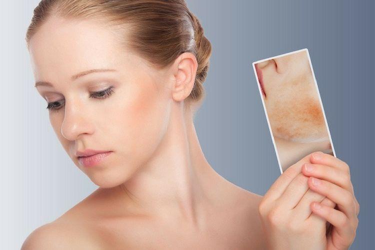 Dermite séborrhéique : quelles solutions contre cette maladie de la peau ?