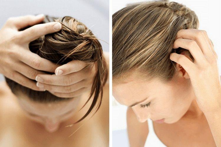Prendre soin de son cuir chevelu pour avoir de beaux cheveux