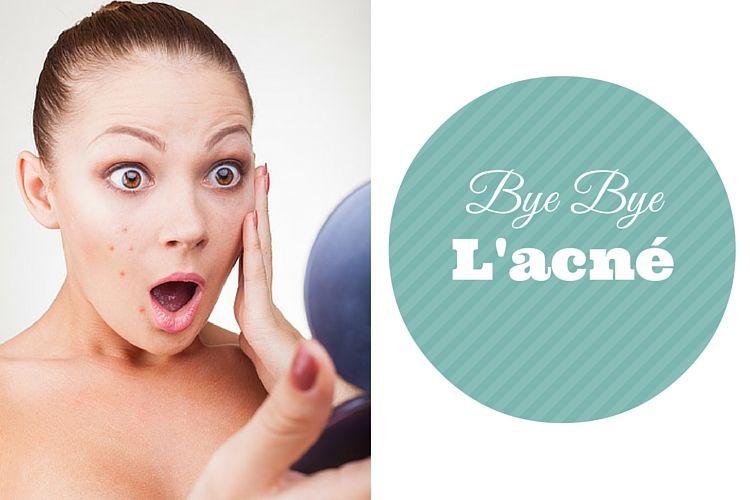 Comment se d barrasser de l 39 acn adulte - Comment se debarrasser des araignees a l exterieur ...