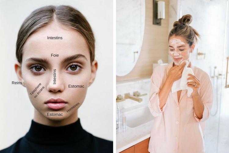 Le face-mapping pour comprendre ses problèmes de peau
