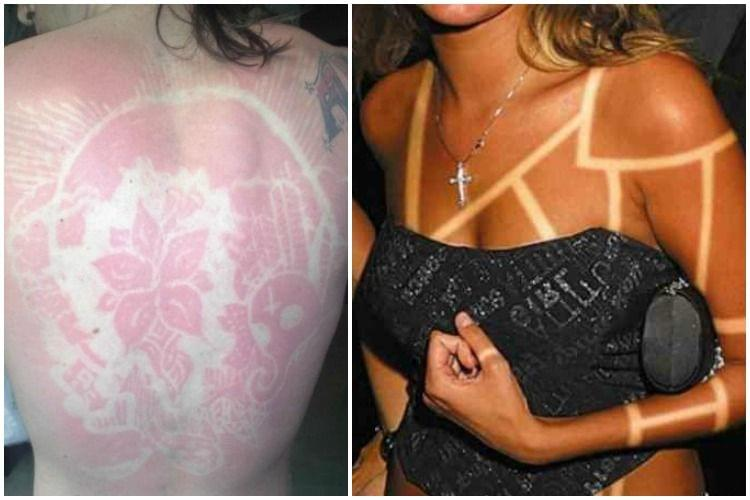 SunburnArt ou bronzage artistique : Attention danger !
