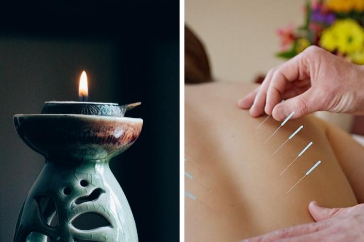 Points d'acupuncture pour le visage et le corps