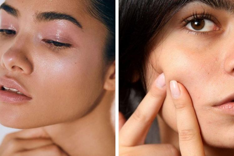 Le zinc : votre allié contre l'acné !