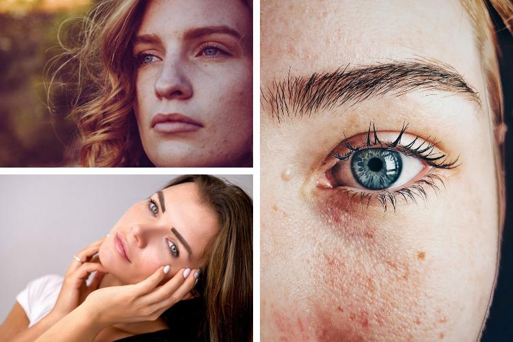 Acné hormonale : comment y remédier ?